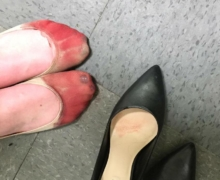 bleeding feet